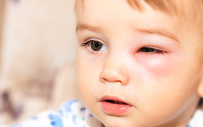 How to Recognize, Prevent, & Care For Cellulitis